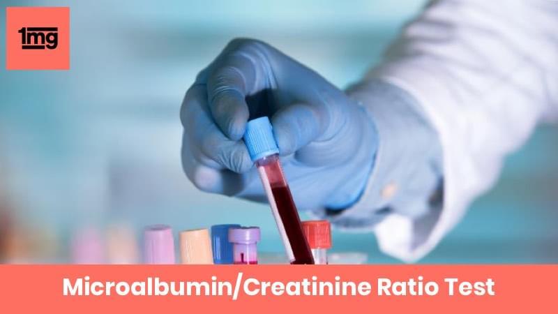 Microalbumin/Creatinine Ratio