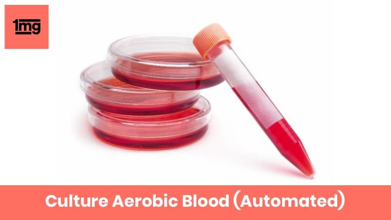 Culture Aerobic Blood (Automated)
