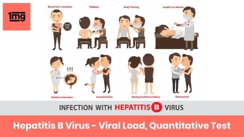 Hepatitis B Virus - Viral Load, Quantitative