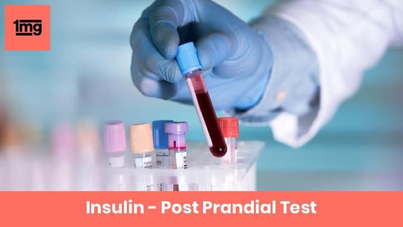 Insulin - Post Prandial