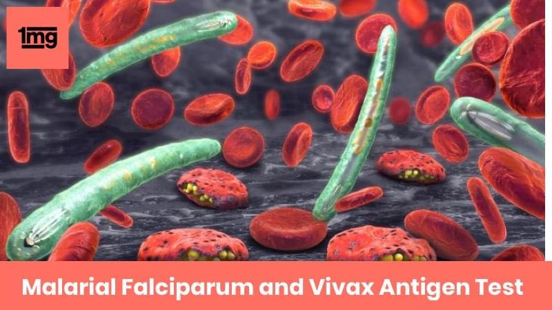 Malarial Falciparum and Vivax Antigen