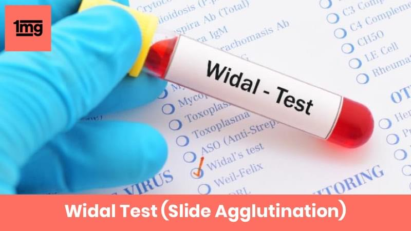 Widal Test (Slide Agglutination)